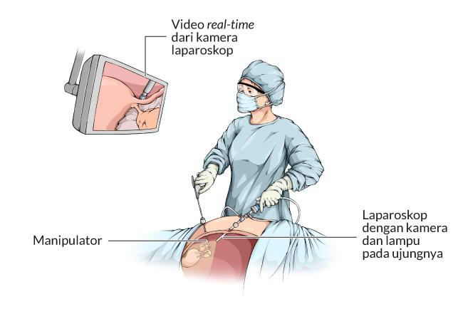Kelebihan Teknik Bedah Laparoskopi - Alodokter