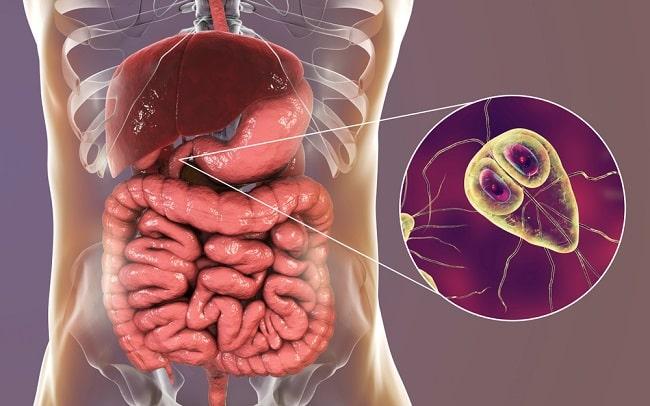 giardiasis treatment uk szalagféreg kép