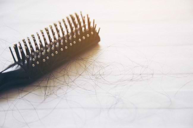 Inilah 5 Cara Alami Mengatasi Rambut Rontok - Alodokter