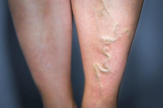 A varikózisok zokni megelőzése, Hogyan kezelik a mélyvénás varikózisokat