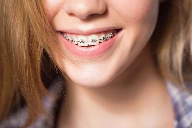 Kawat Gigi: Jenis, Langkah Pemasangan, dan Risikonya - Alodokter