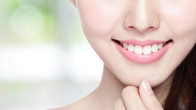 Senyum Cantik dengan Veneer Gigi - Alodokter