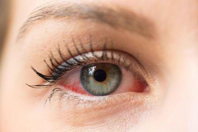 Inilah Penyebab dan Cara Mencegah Mata Merah - Alodokter
