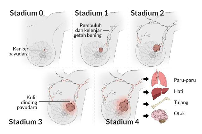 alodokter-kanker-payudara