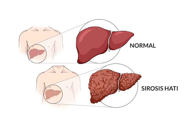 Sirosis-Alodokter
