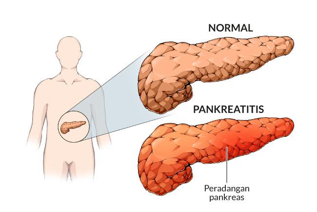 pankreatitis akut-alodokter