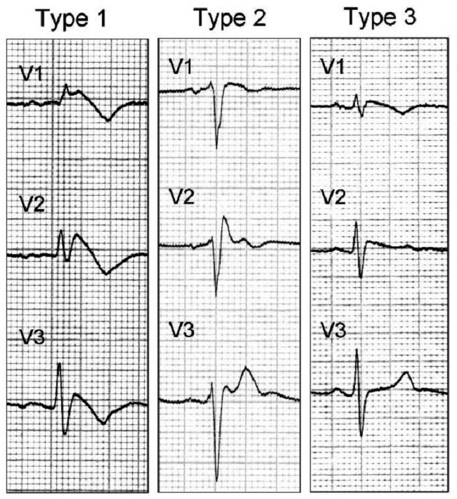 Gambar 1. Pola Gambaran EKG SIndrom Brugada. Sumber Gambar: Napolitano C, Priori SG, WIkimedia Commons, 2008.