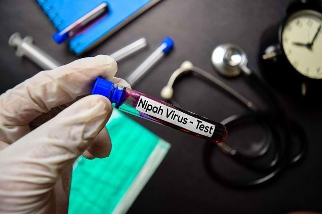 Seputar Virus Nipah dan Potensinya Menjadi Pandemi Baru - Alodokter