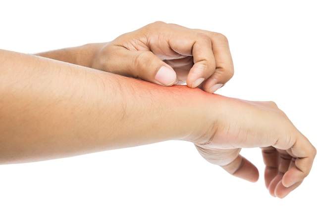 People scratch the itch with hand. itching, Concept with Healthc