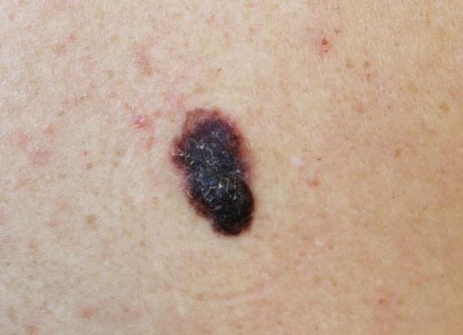 kanker kulit - alodokter