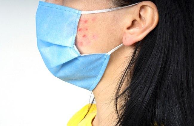Pakai Masker Seharian Sebabkan Skindemik, Ini Solusinya - Alodokter