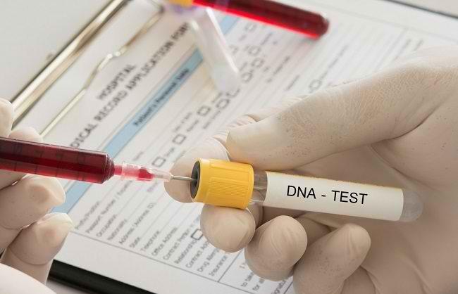 Ketahui Beragam Jenis dan Manfaat Tes DNA - Alodokter