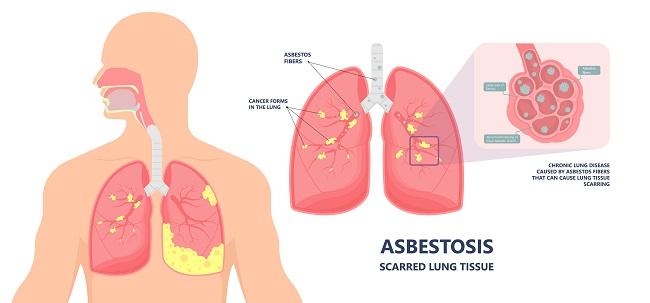 Asbestos,Breath,Chest,Pain,Testes,Ascites,Hydrocele,Scrotum,Swollen,Difficulty