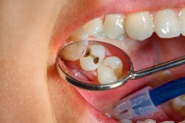 Kenali Risiko dan Bahaya Gigi Berlubang - Alodokter
