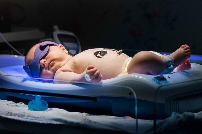 Kenali Penyebab Bayi Kuning dan Cara Mengatasinya - Alodokter
