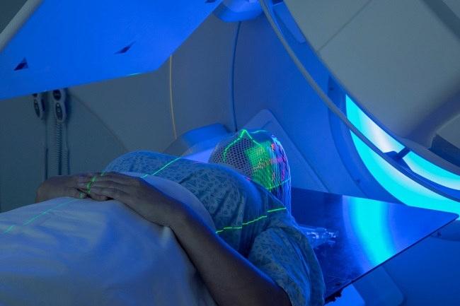Inilah Efek Samping Radioterapi - Alodokter