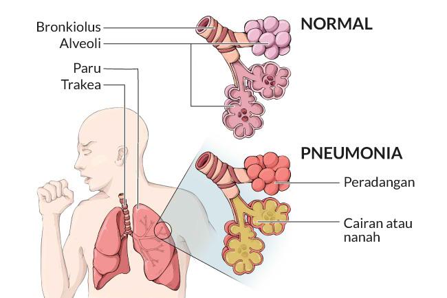 pneumonia, gejala, penyebab, cara mengobati, cara mencegah, alodokter