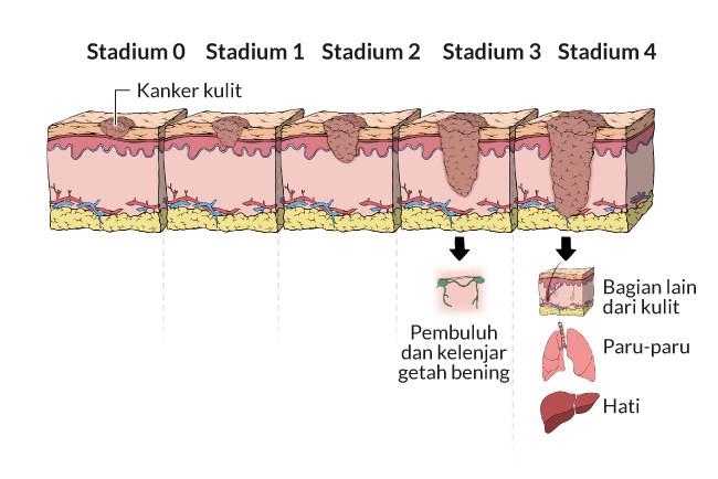 kanker kulit melanoma, gejala, penyebab, cara mencegah, cara mengobati, alodokter