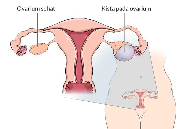 18-kista-ovarium, gejala, penyebab, cara mencegah, cara mengobati, alodokter