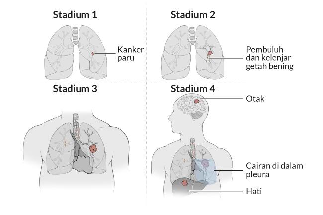 kanker paru, gejala, penyebab, cara mencegah, cara mengobati, alodokter