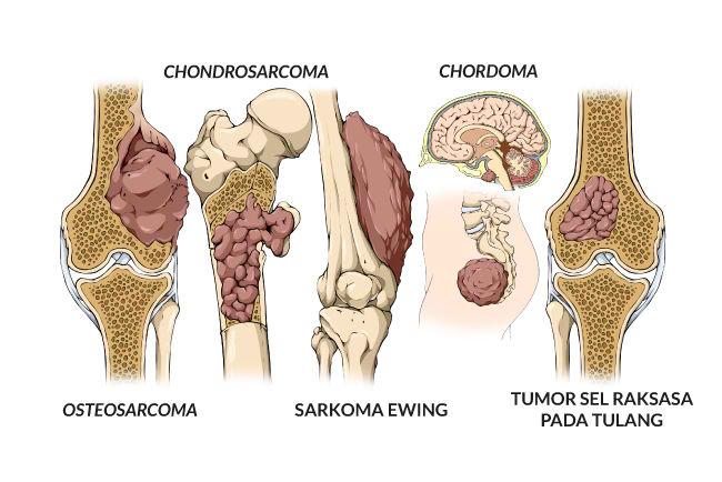 kanker tulang, tumor tulang, gejala, penyebab, cara mencegah, cara mengobati, alodokter