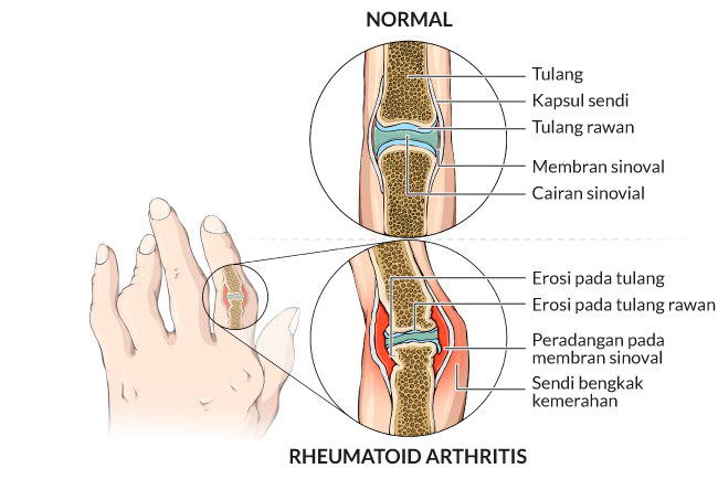 rheumatoid arthritis, gejala, penyebab, cara mencegah, cara mengobati, alodokter