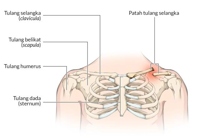 patah tulang selangka, gejala, penyebab, cara mencegah, cara mengobati, alodokter
