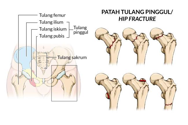 patah tulang pinggul, gejala, penyebab, cara mencegah, cara mengobati, alodokter