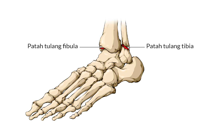 patah pergelangan kaki, gejala, penyebab, cara mencegah, cara mengobati, alodokter