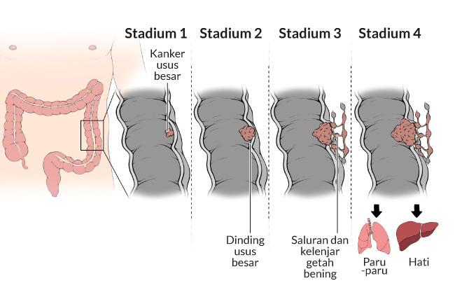 cancer de la colon squamous papilloma uvula