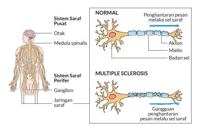 multiple sclerosis. gejala, penyebab, adalah, cara mencegah, cara mengobati, alodokter