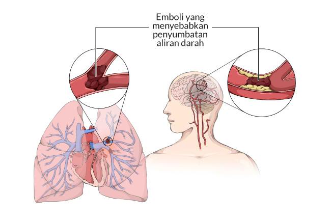 emboli, gejala, penyebab, adalah, cara mencegah, cara mengobati, alodokter