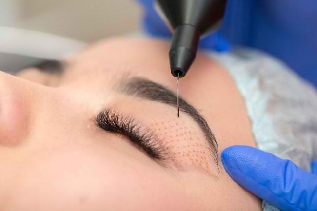 Hal-Hal Seputar Operasi Kelopak Mata yang Perlu Diketahui - Alodokter