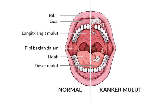 kanker mulut, gejala, penyebab, cara mencegah, cara mengobati, alodokter