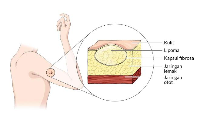 lipoma, gejala, penyebab, cara mencegah, cara mengobati, alodokter
