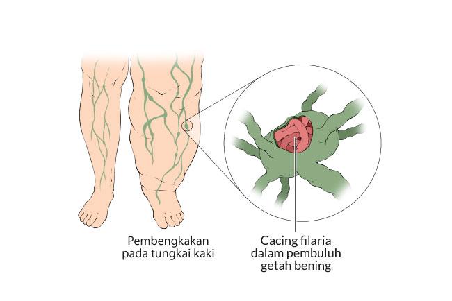 filariasis, kaki gajah, gejala, penyebab, cara mencegah, cara mengobati, alodokter