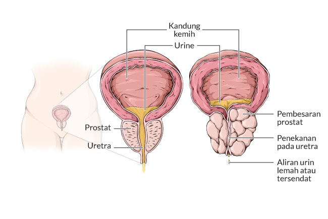 bph, benign prostat, gejala, penyebab, cara mencegah, cara mengobati, alodokter