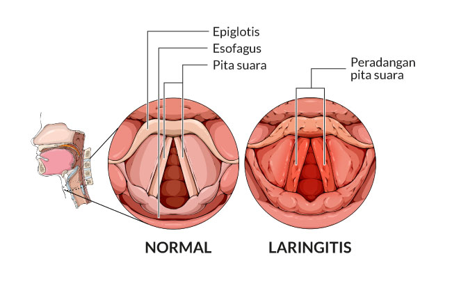 laringitis, gejala, penyebab, cara mencegah, cara mengobati, alodokter