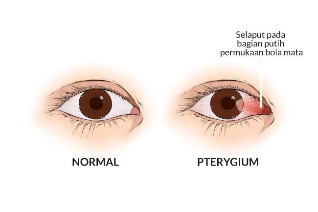pterygium, gejala, penyebab, cara mencegah, cara mengobati, alodokter