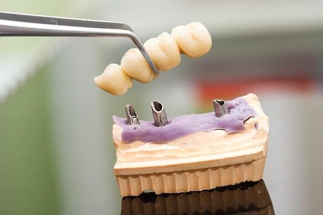 Memahami Proses Pemasangan Implan Gigi dan Risikonya - Alodokter