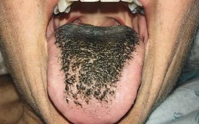 Black_hairy_tounge-min (1)