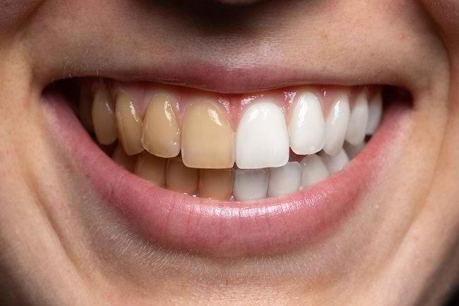 Beragam Cara Mengatasi Gigi Kuning di Dokter Gigi - Alodokter