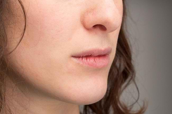 Bibir Pecah-Pecah, Inilah 5 Cara Mudah Mengatasinya - Alodokter