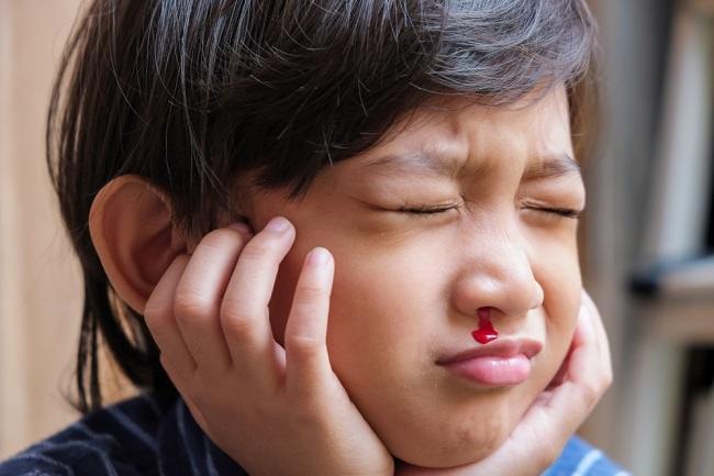 Ketahui Penyebab Mimisan pada Anak saat Tidur - Alodokter
