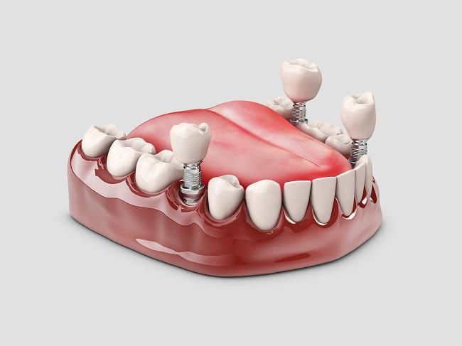 Implan Gigi, Ini yang Harus Anda Ketahui - Alodokter