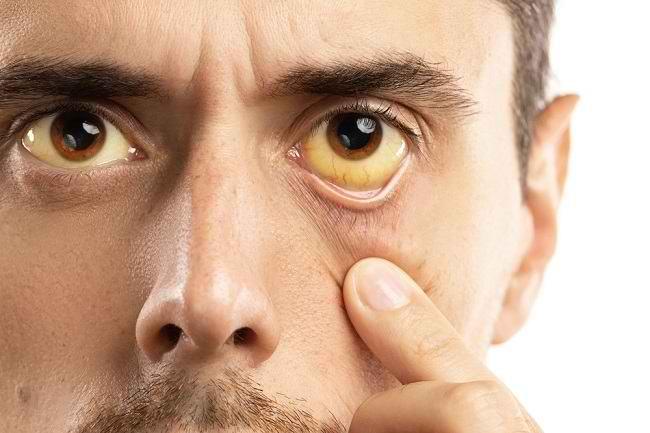 Jangan Dianggap Sepele, Ini 5 Penyebab Mata Kuning yang Perlu Diwaspadai - Alodokter