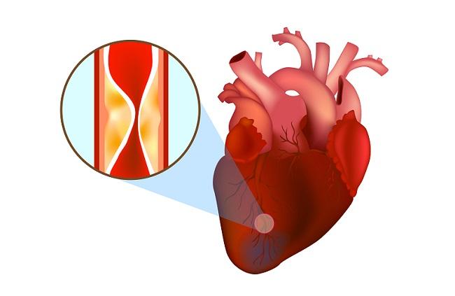 Blocked,Arteries.,Heart,Attack.,Myocardial,Infarction.