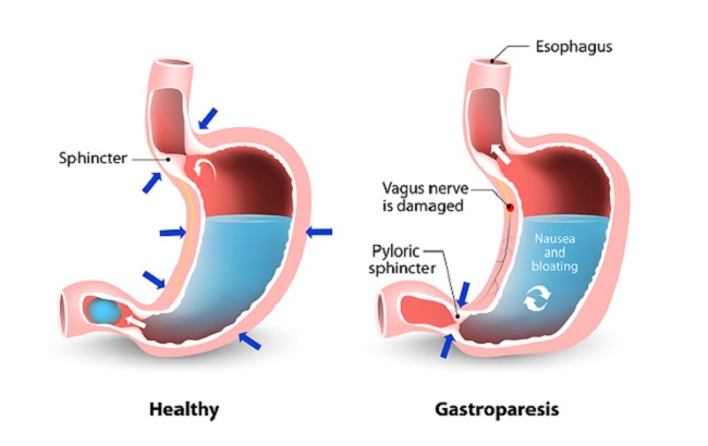 Visual,Comparison,Of,Healthy,Gastric,And,Stomach,With,Gastroparesis.