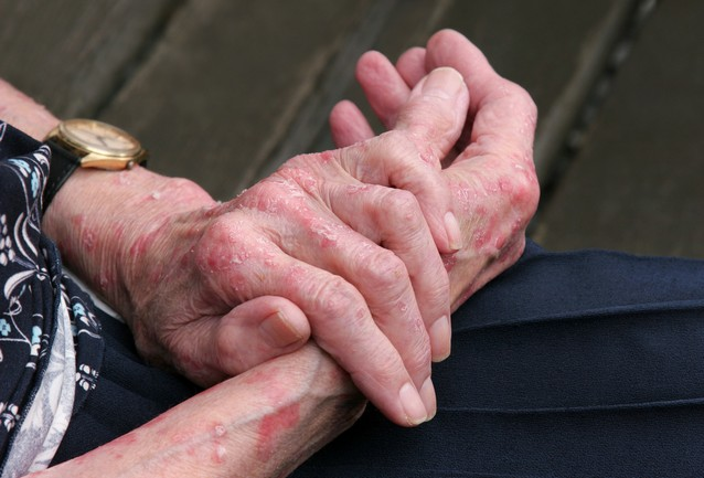 Extreme,Psoriasis,On,The,Hands,Of,An,Elderly,Female.