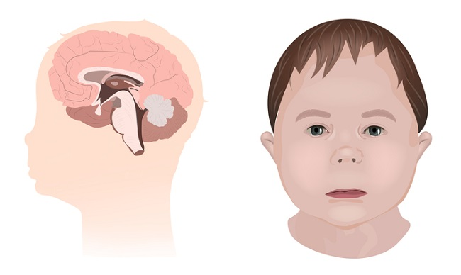 Illustration,Showing,The,Effects,Of,Foetal,Alcohol,Syndrome,On,The